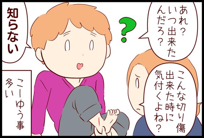 いたみ02