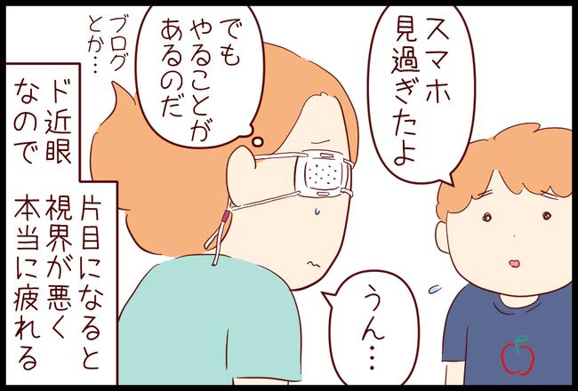 飛蚊症03