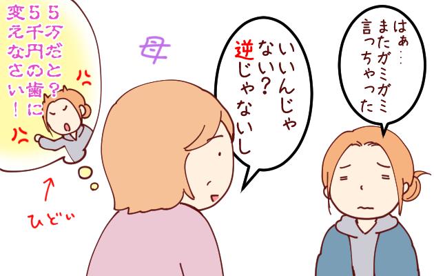 差し歯06