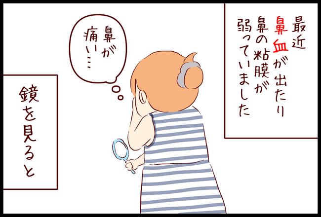 ニキビ01
