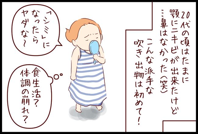ニキビ05
