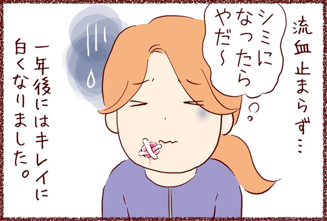 ホクロ04