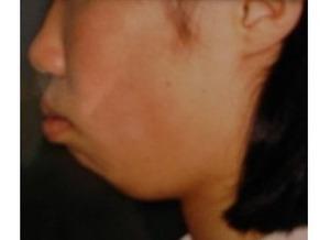 【アゴ】顎がない、後退している人その7【あご】->画像>241枚