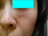 目の下ヒアルロン酸注入2