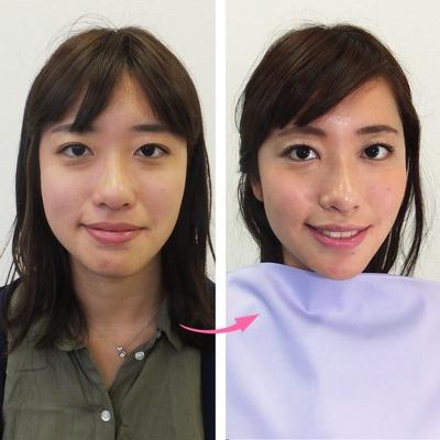 顔タイプ診断と顔分析メイクレッスンの組み合わせで変身その2