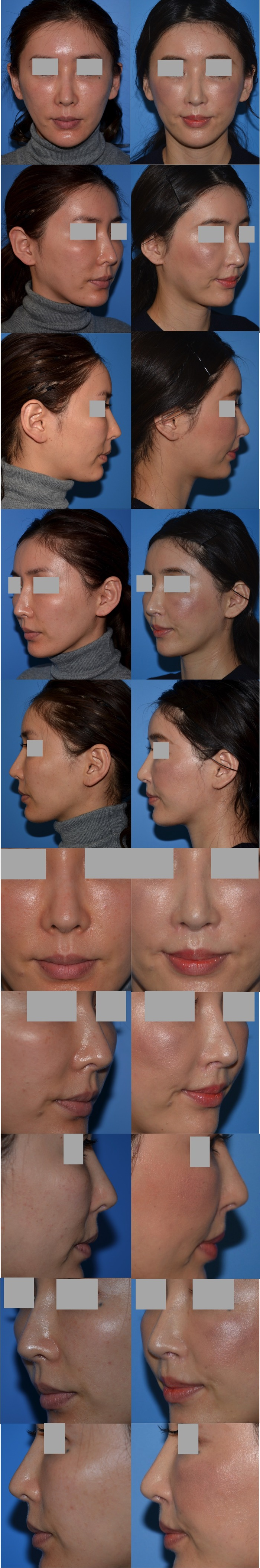 鼻下長短縮術 鼻翼挙上術 口角挙上