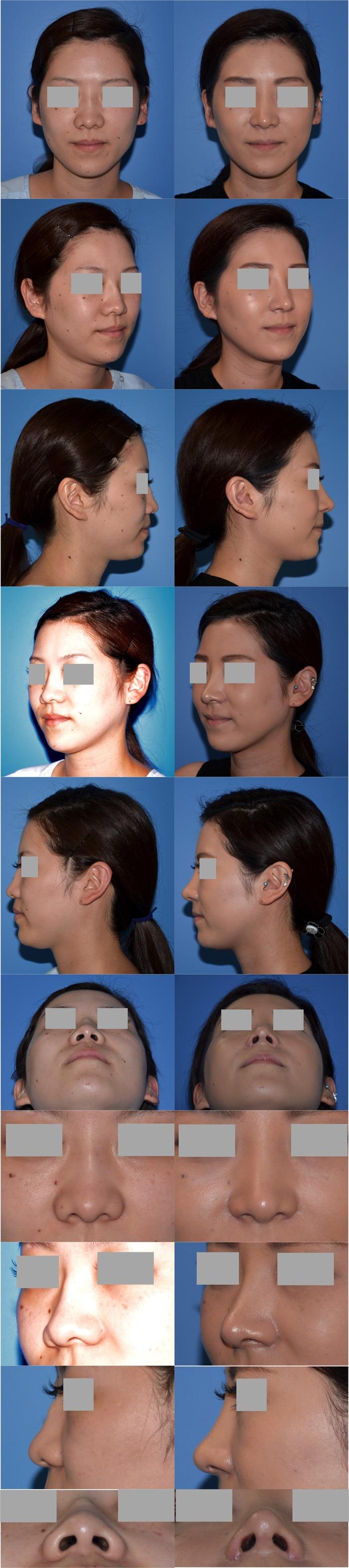 鼻中隔延長術 鼻翼挙上 隆鼻術