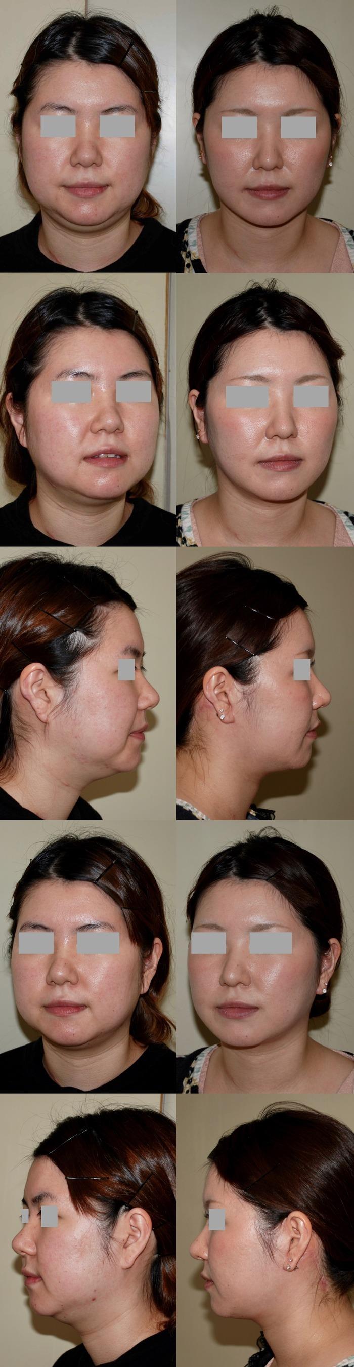 フェイスリフト ネックリフト 脂肪吸引 鼻尖縮小術 術後6ヶ月