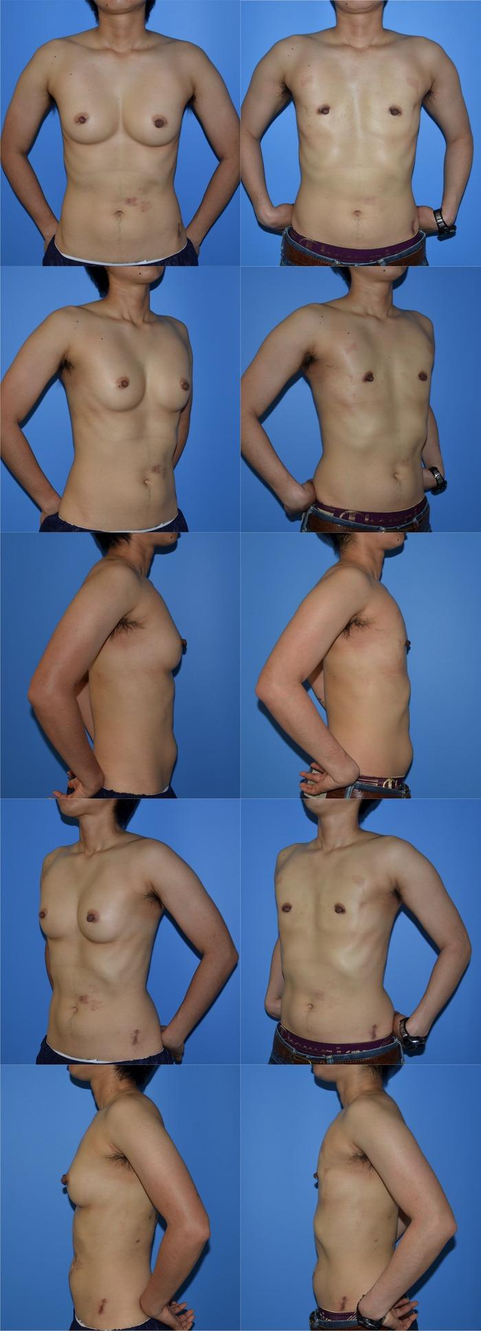 乳腺切除 漏斗胸