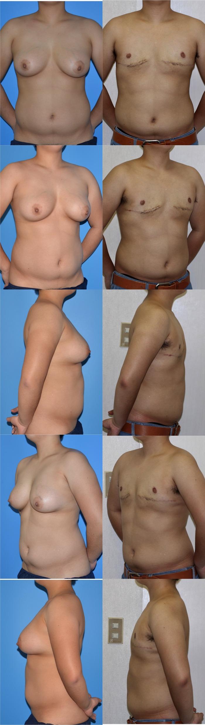 乳房切断 術後5ヶ月