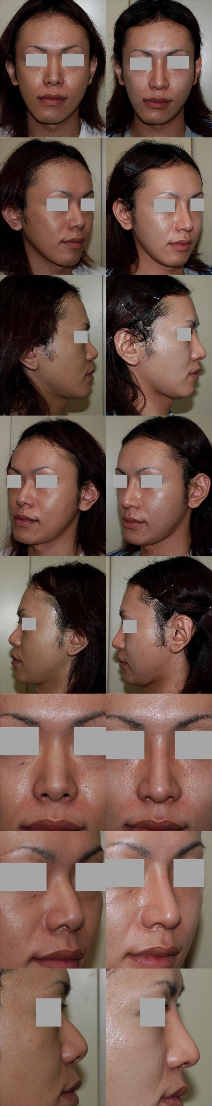 鼻中隔延長術 鼻骨骨切り術 隆鼻術
