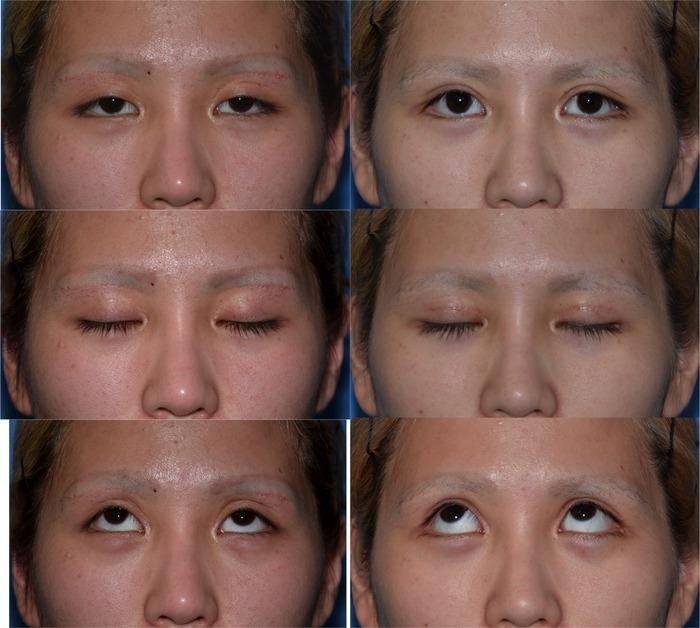 眼瞼下垂 下眼瞼下制術