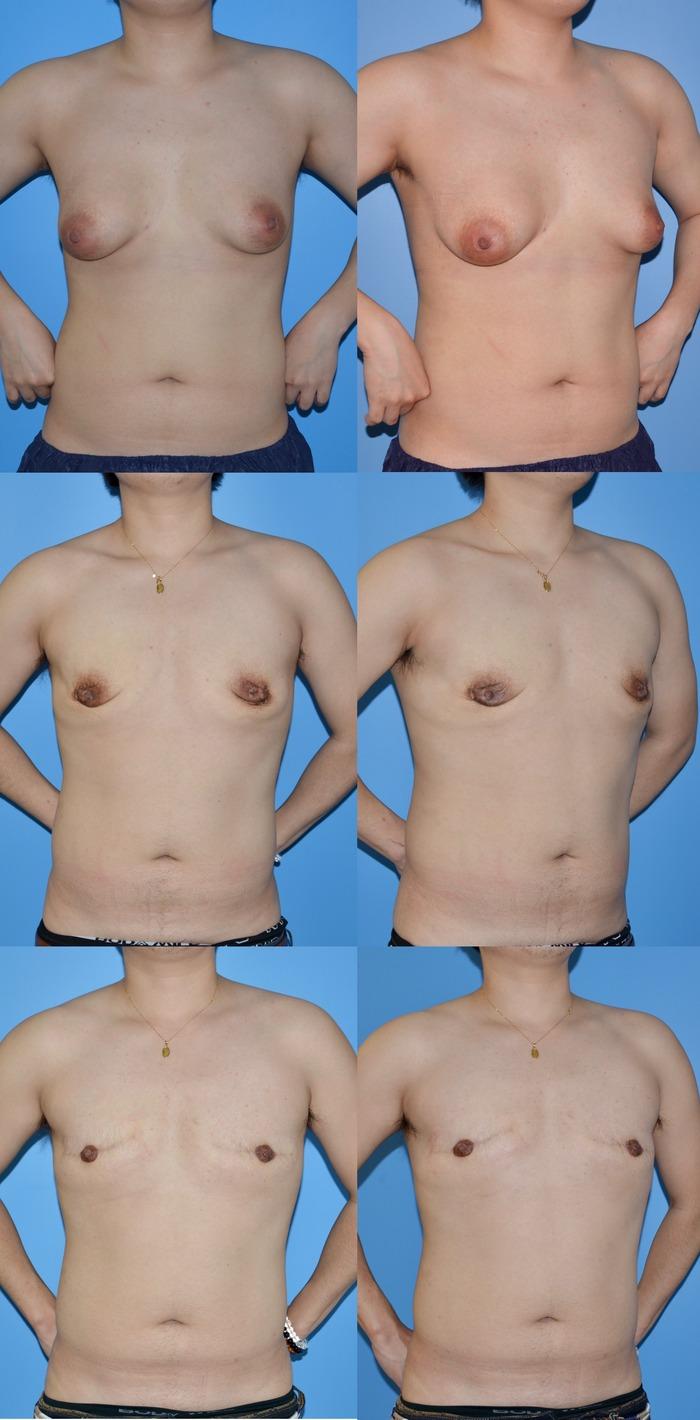 乳腺切除 余剰皮膚切除 乳輪縮小術