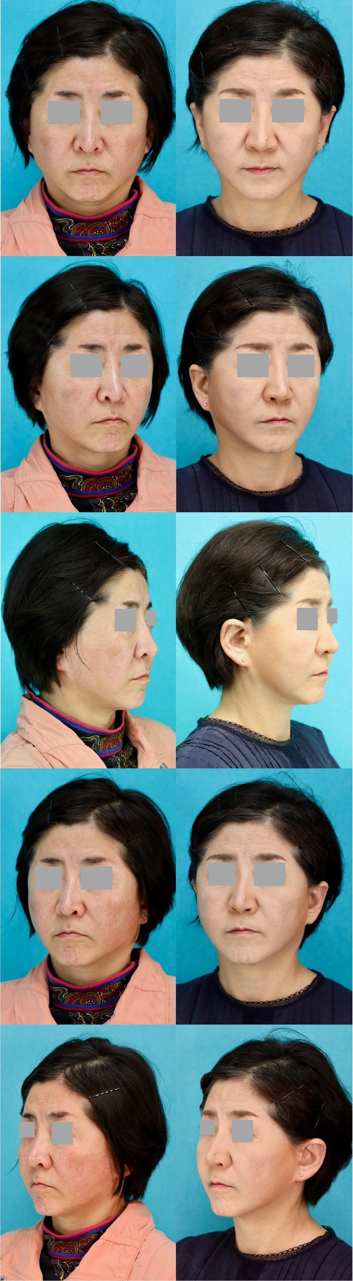 鼻孔縁下降術 術後4ヶ月
