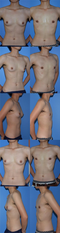 乳腺切除術t