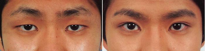 埋没法偽性眼瞼下垂