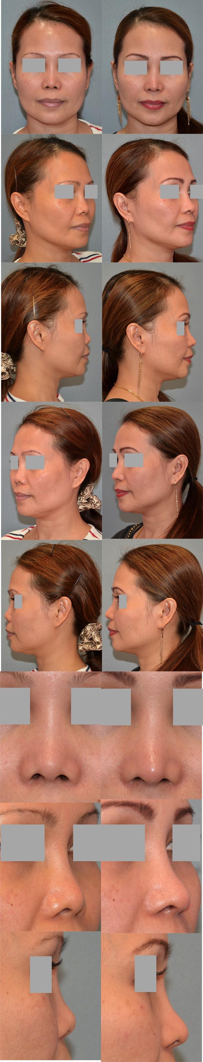 鼻中隔延長術 隆鼻術