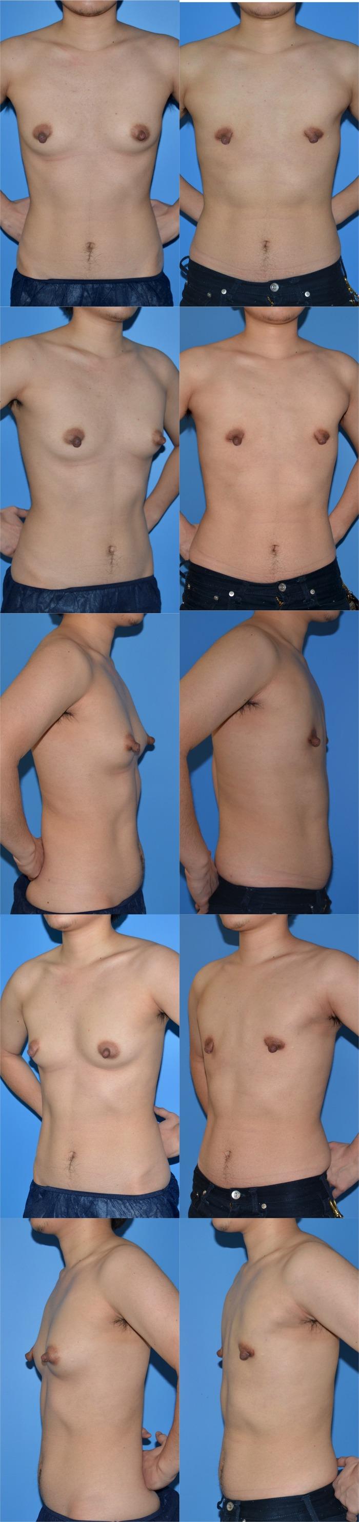 乳腺切除術tm 術後1ヶ月