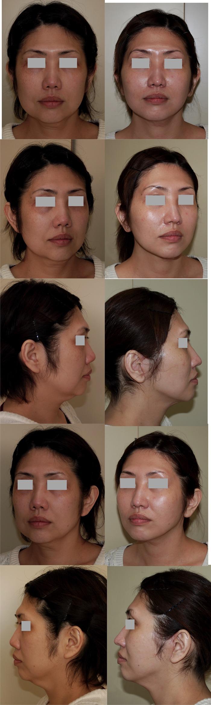フェイスリフト フェイスライン脂肪吸引 鼻中隔延長術 6ヶ月