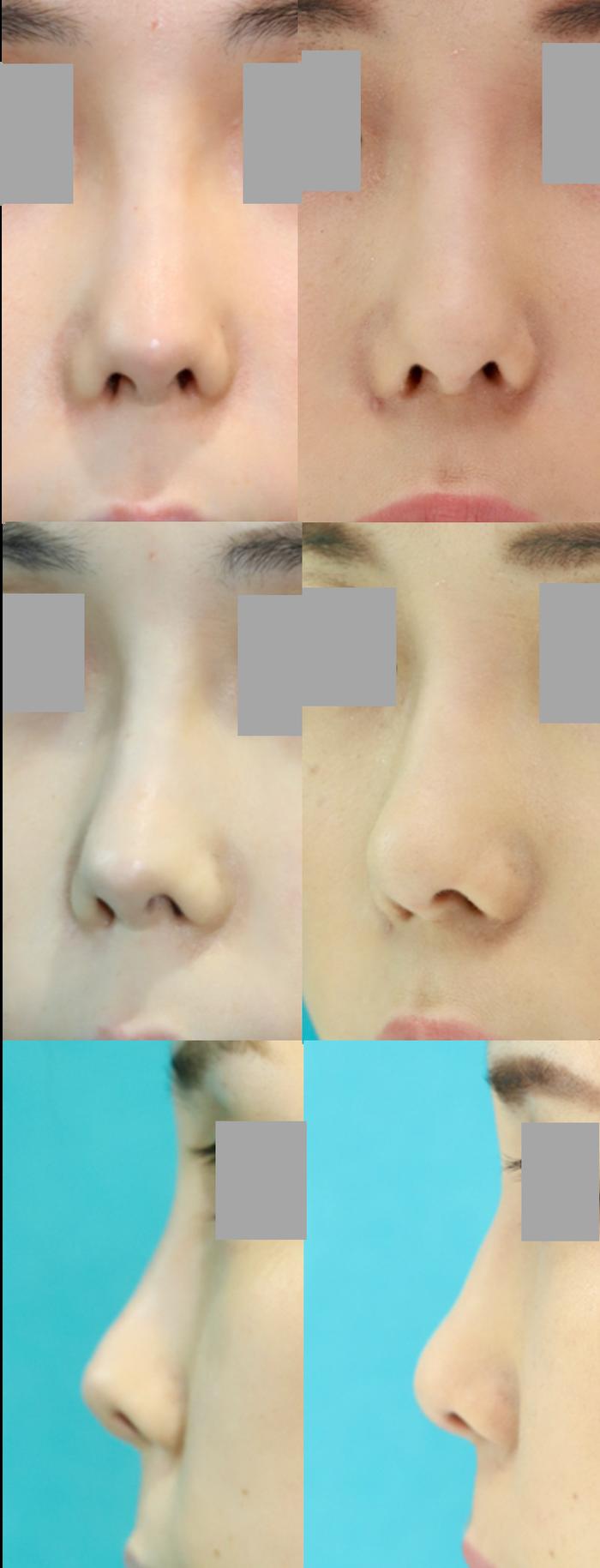 鼻尖移植軟骨除去 軟部組織移植 術後7ヶ月 拡大