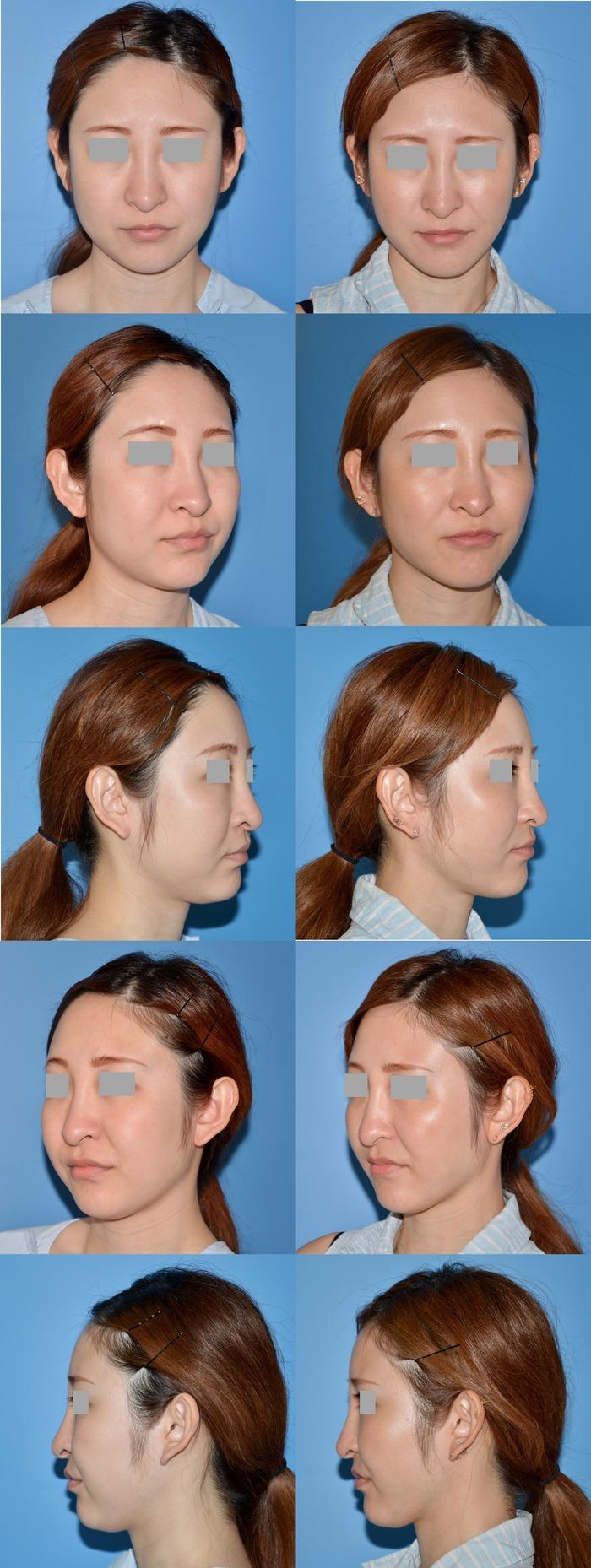 頬顎脂肪吸引術ma 術後3ヶ月