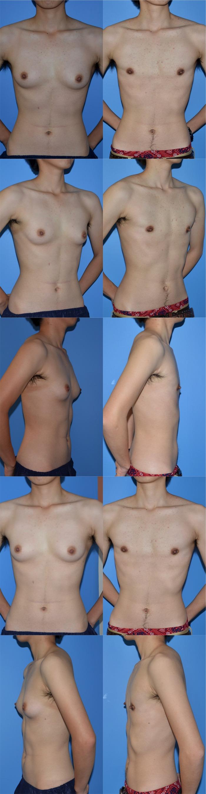 乳腺切除術 術後7ヶ月