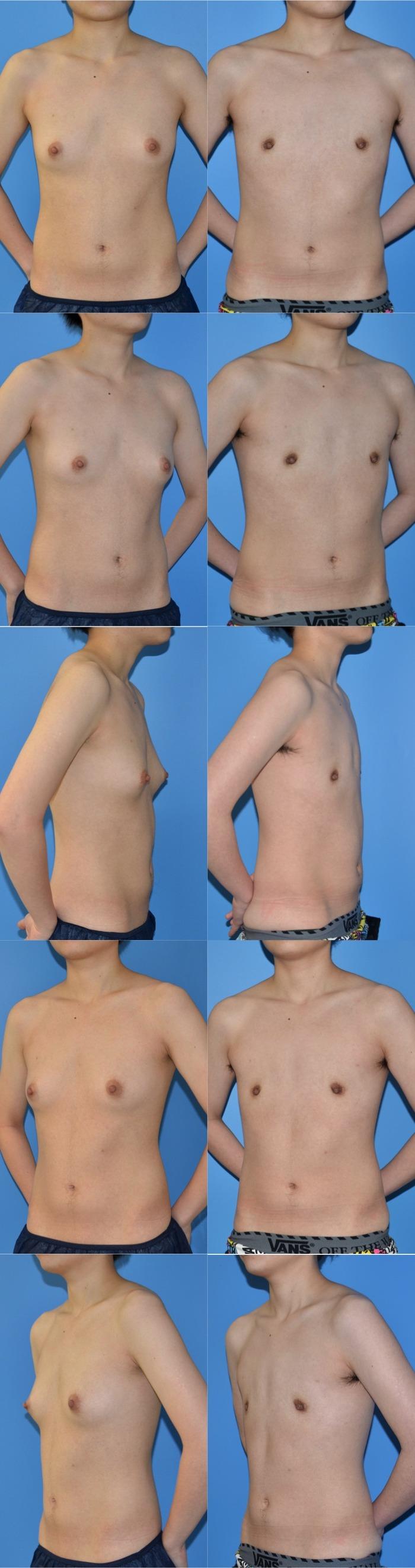乳腺切除ny3ヶ月