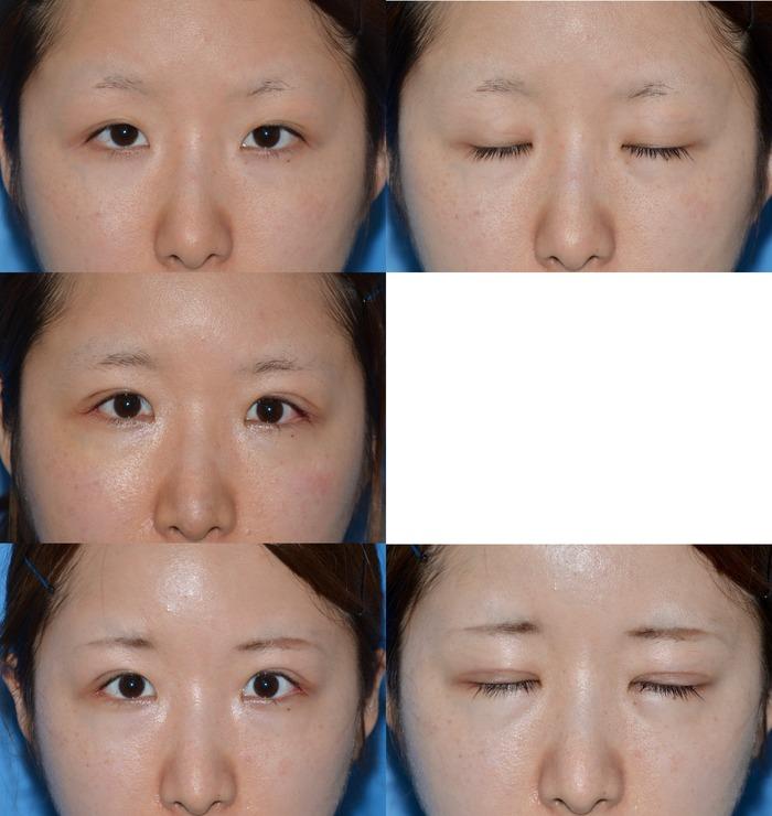眼瞼下垂 二重切開 目尻切開 鼻尖縮小術