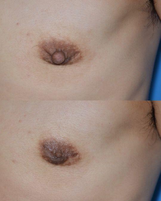 乳腺 乳頭縮小術 半年 拡大