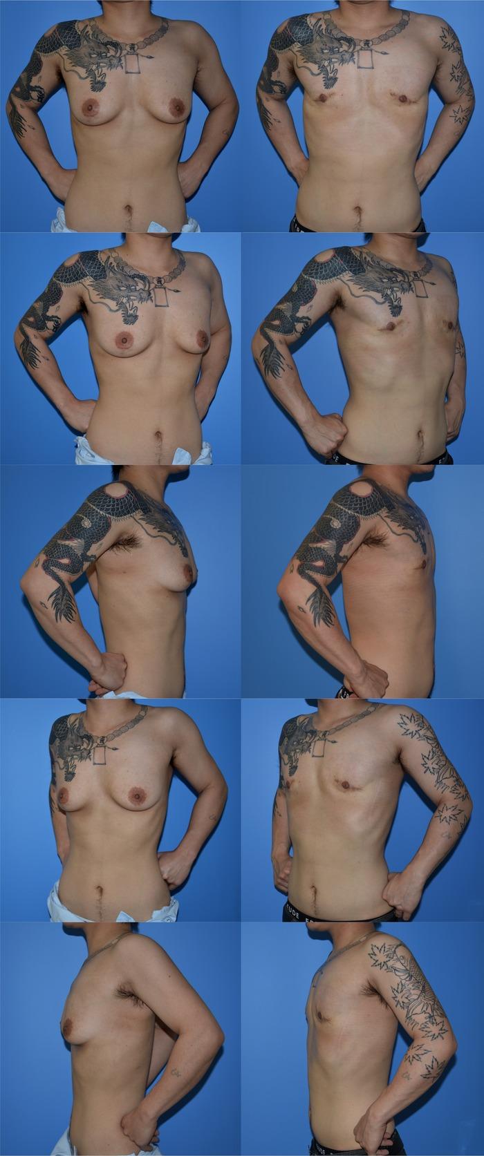 乳腺切除 皮膚余剰