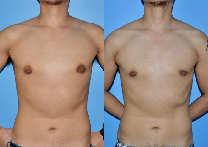 乳輪縮小術 術後1ヶ月