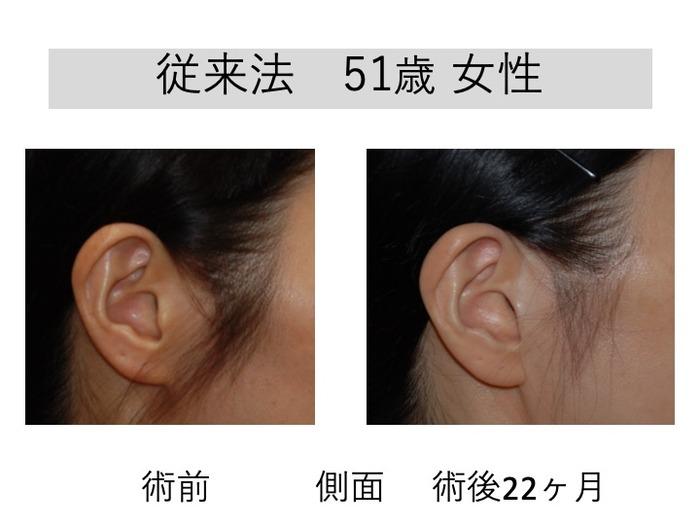 フェイスリフト 耳前部切開デザイン 1