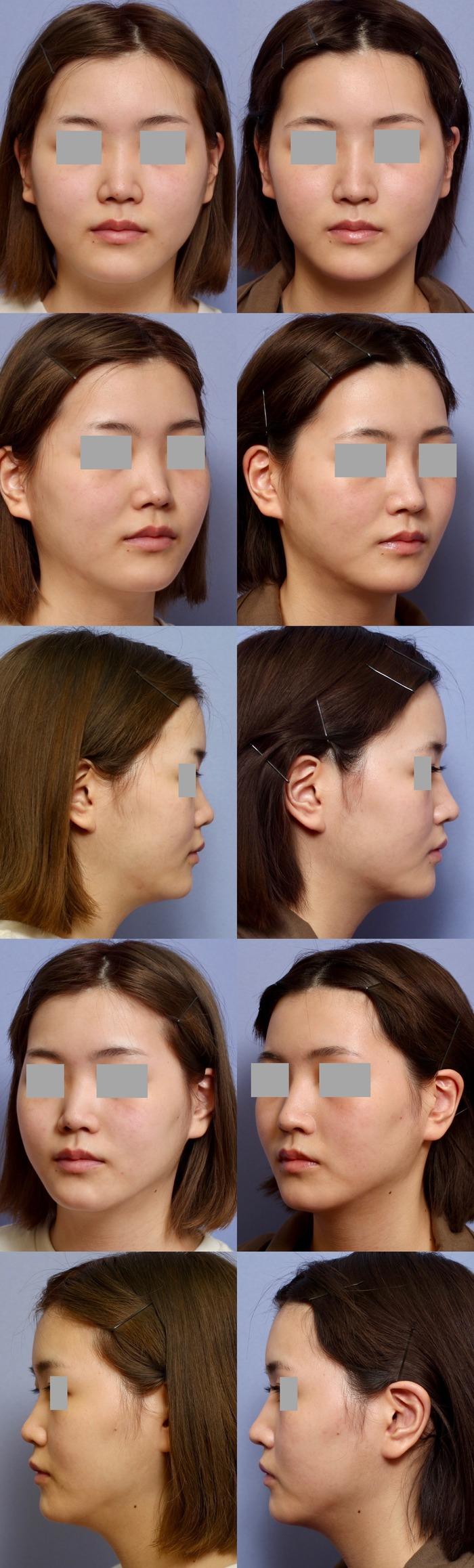 鼻尖縮小術 隆鼻術 術後1ヶ月