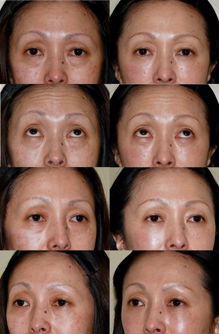 下眼瞼経結膜ハムラ術後2ヶ月