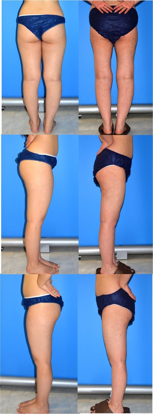 大腿脂肪吸引
