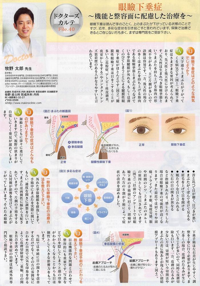 月刊ぷらざ2014年6月号牧野太郎取材記事眼瞼下垂001