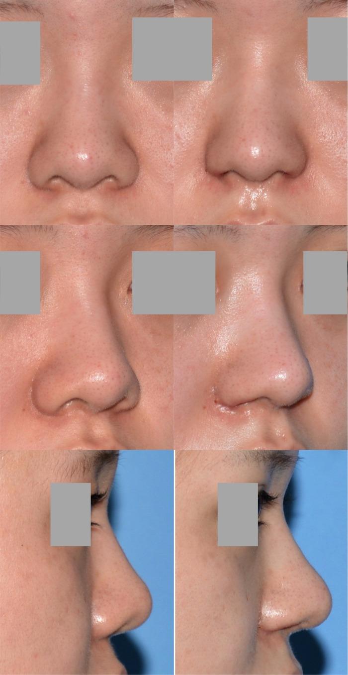 隆鼻術 鼻中隔延長術 鼻翼縮小術 KN  術後1ヶ月 拡大