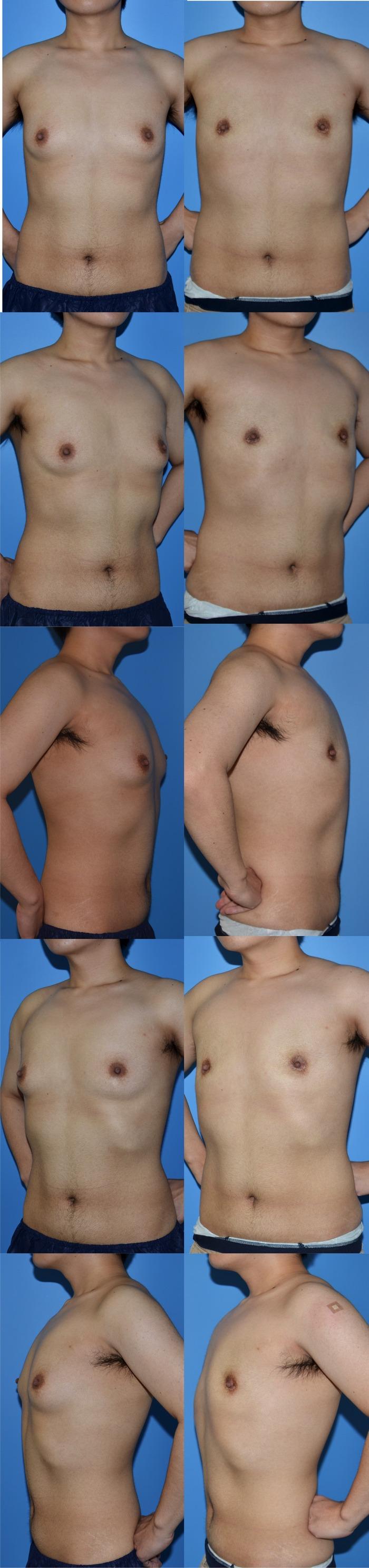 乳腺切除ys 術後2ヶ月
