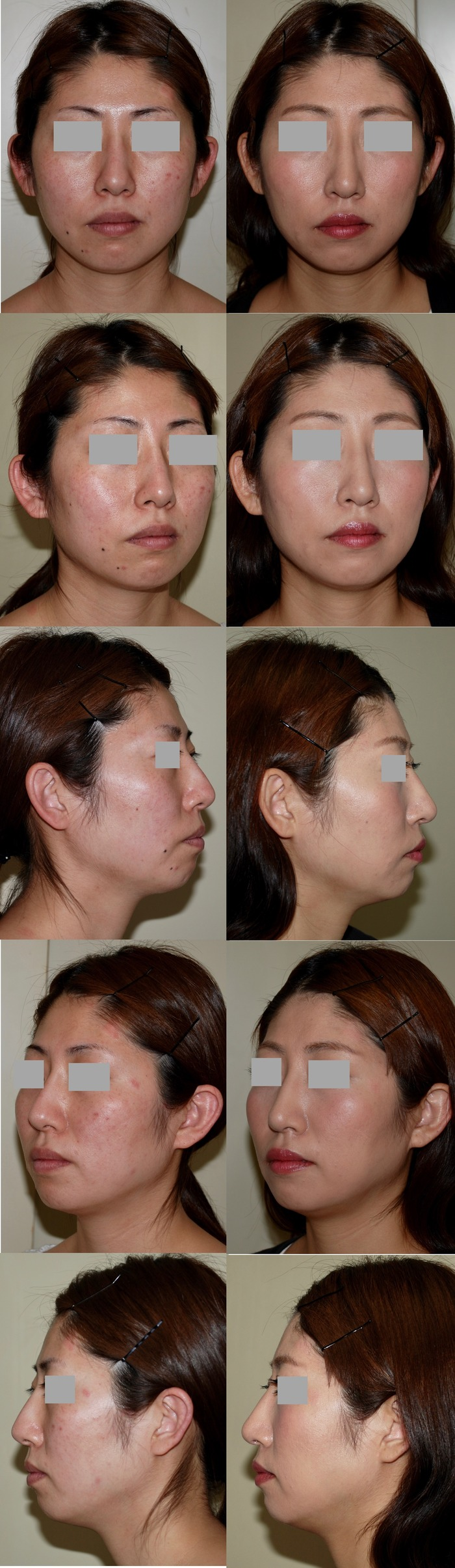 他院鼻プロテーゼ抜去・鼻骨骨切り術・鼻中隔延長術 術後3ヶ月