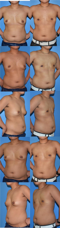 乳腺切除術yn 1ヶ月
