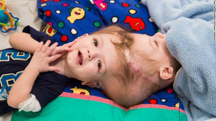 161007183200-03-mcdonald-family-conjoined-twins-exlarge-169