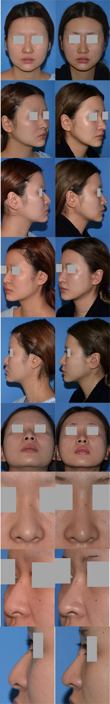 鼻骨骨切り術鼻中隔延長術脂肪吸引