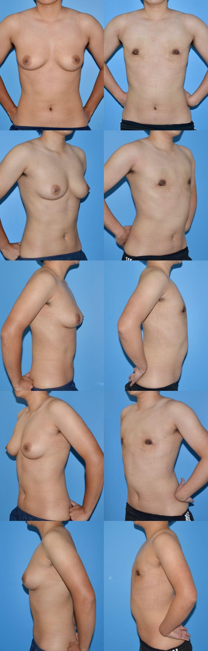 乳腺切除 GID gs 術後3ヶ月