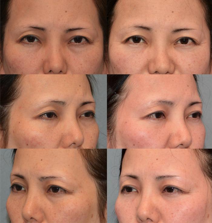 下眼瞼経結膜ハムラ法14ヶ月