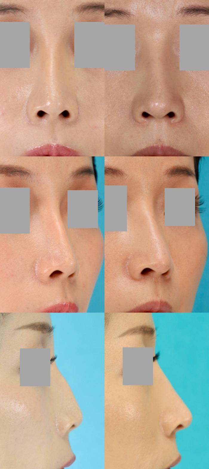 鼻中隔延長術 オーダメイドシリコン 術後8ヶ月 拡大