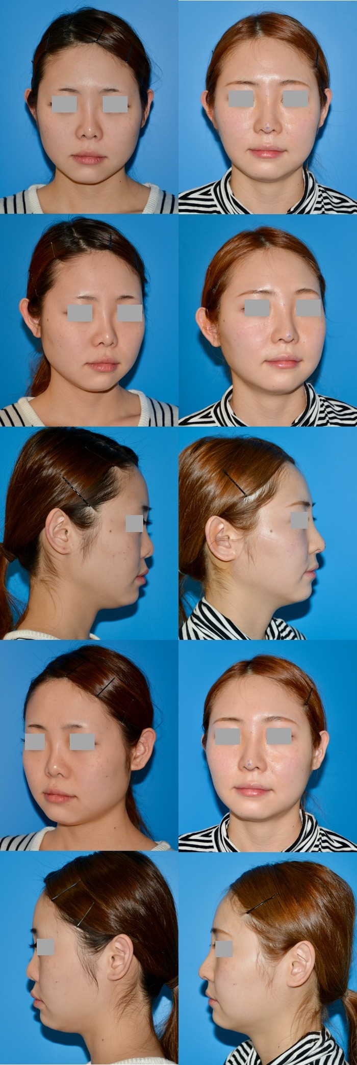 鼻中隔延長術、隆鼻術シリコン入れ替え、他院修正