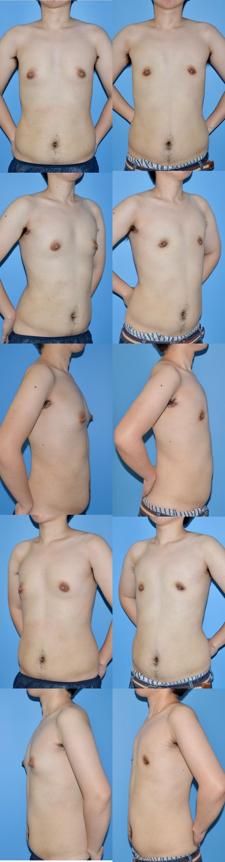 乳腺切除術tk 術後3ヶ月