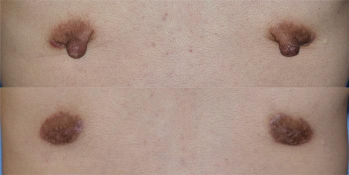 乳輪乳頭縮小術 拡大 術後1ヶ月