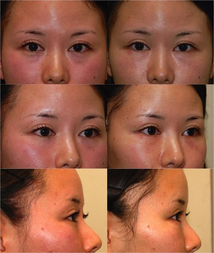 下眼瞼経結膜ハムラ03