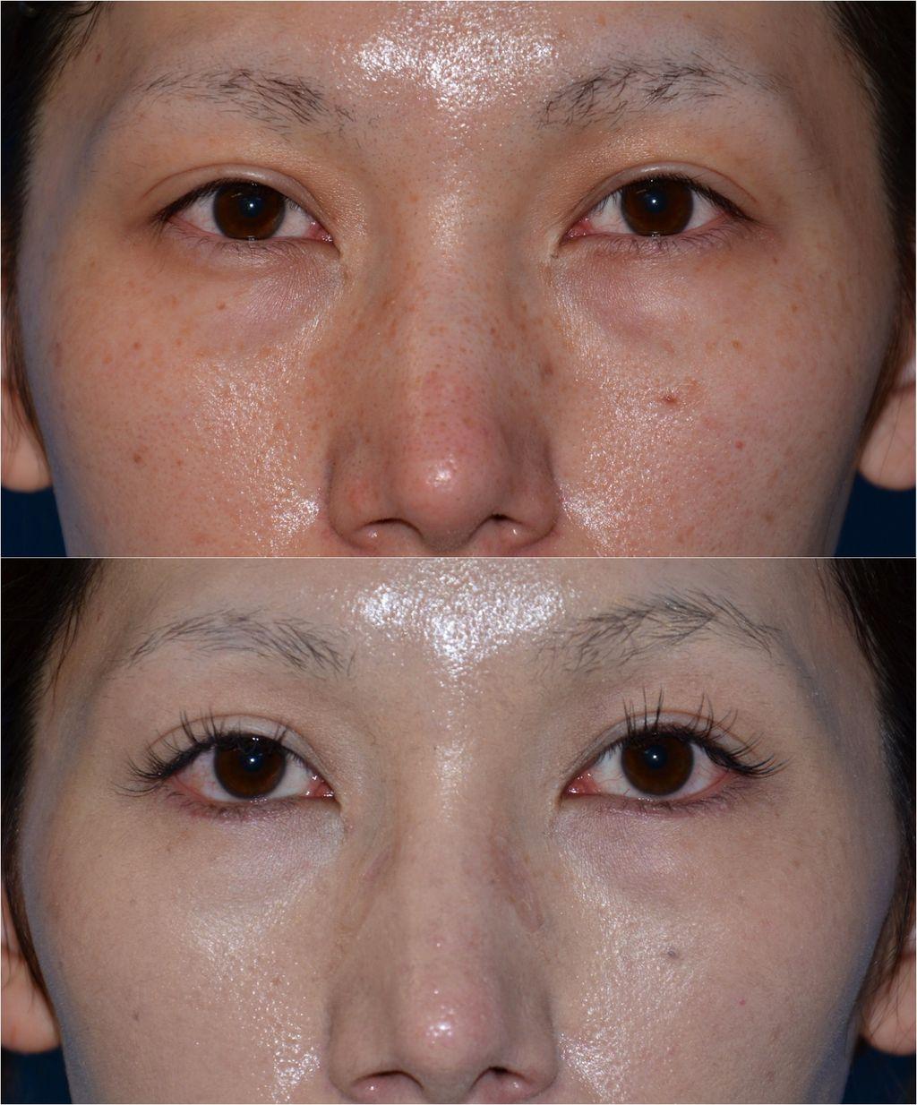 下眼瞼下制術01 下眼瞼下制術(たれ目形成術、グラマラスライン形成術)のパーツモニターさま こん